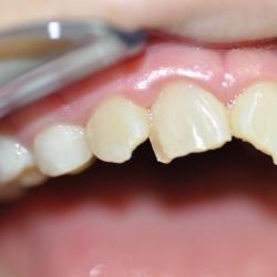 Denti caduti o rotti a causa di un trauma: un danno irreparabile?