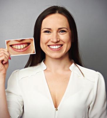 Servizi Dentali Estetici