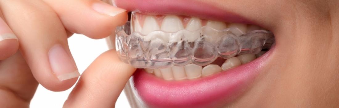 Digrignare i denti nel sonno: cause e sintomi del bruxismo