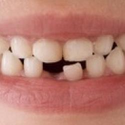 Cellule staminali dai denti da latte. Per la fatina o il topino dei denti è giunta l'ora della pensione?