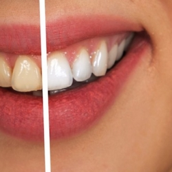 Avere denti bianchi è possibile se sai come farlo!